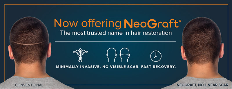 Now offering Neograft