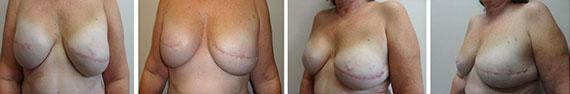 Breast Micro Fat Grafting