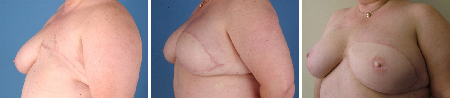 Are mistaken. flap breast reconstruction