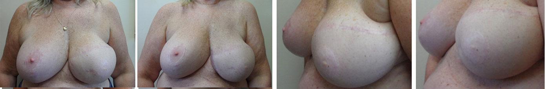 Breast MicroFat Grafting