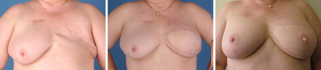 What necessary flap breast reconstruction