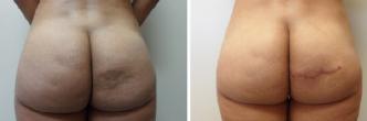 Buttock Micro Fat Grafting