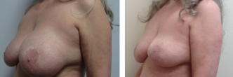 Vertical Short Scar Breast Lift
