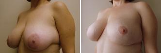 Vertical Short Scar Breast Lift