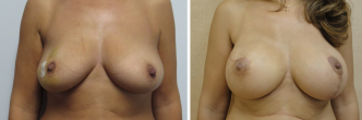 Left Side Vertical Mastopexy with Right Sided Mastectomy