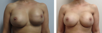 Breast Reconstruction with Insertion of Tissue Expanders