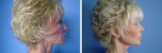 Revisional Facelift
