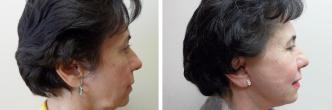 Facial Micro Fat Grafting
