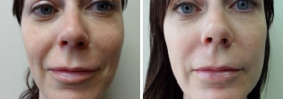 Facial Micro Fat Grafting