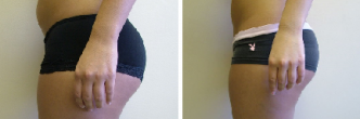 Thigh and Trunk Liposuction