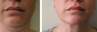 Submental Liposuction