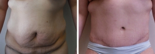 Lower Body Lift/ Belt Lipectomy