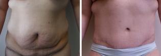 Lower Body Lift/ Belt Lipectomy