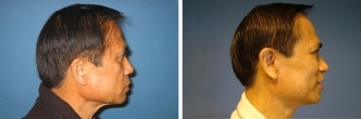 Facelift / Neck / Double Chin Correction