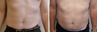 Male Abdominal and Flank Liposuction