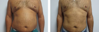 Male Liposuction