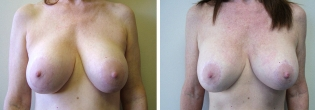 Revisional Breast Surgery with Mastopexy