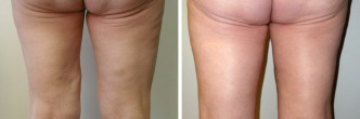 Revisional Thigh Lift
