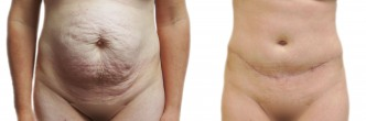 Tummy Tuck and Hernia Repair